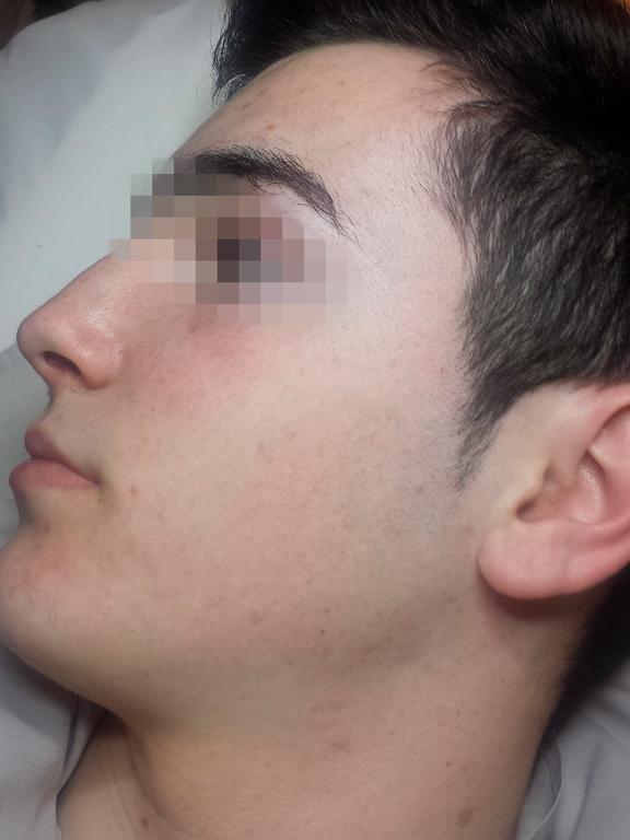 tratamiento acne adulto