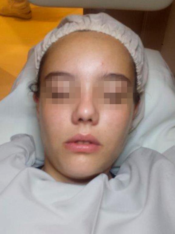 tratamiento efectivo contra el acne