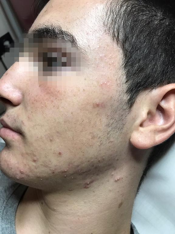 tratamiento eficaz para el acne