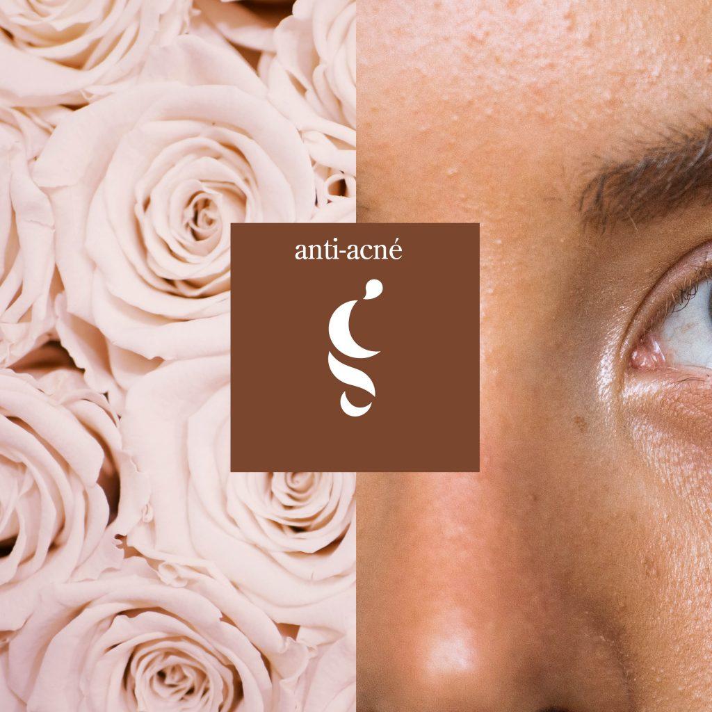Oxigenación facial anti-acné