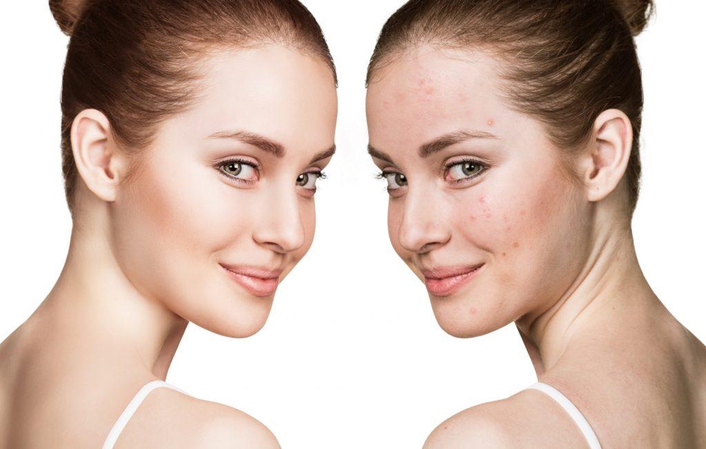 Limpieza de piel y acné