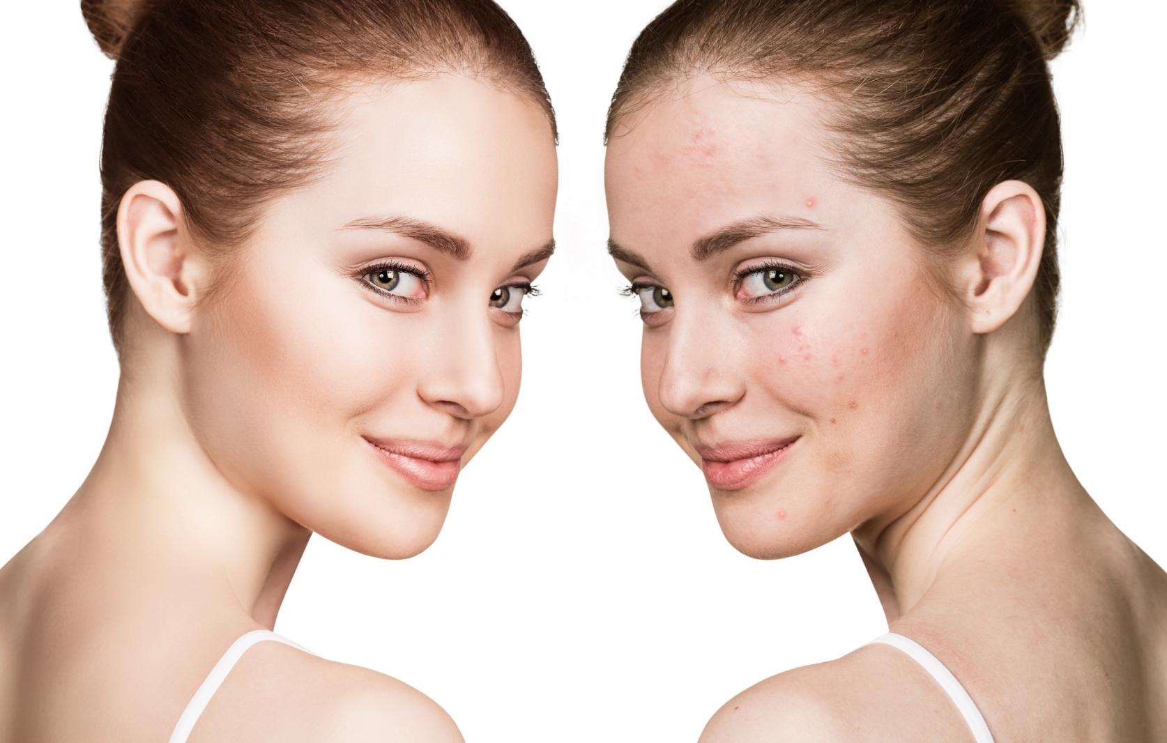 Descubre lo que una buena limpieza facial puede hacer por tu piel