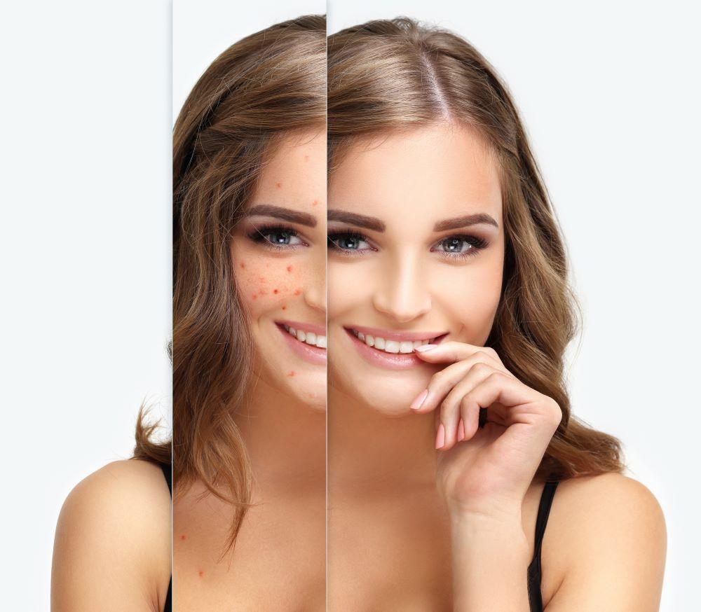tratamiento del acné en adultos